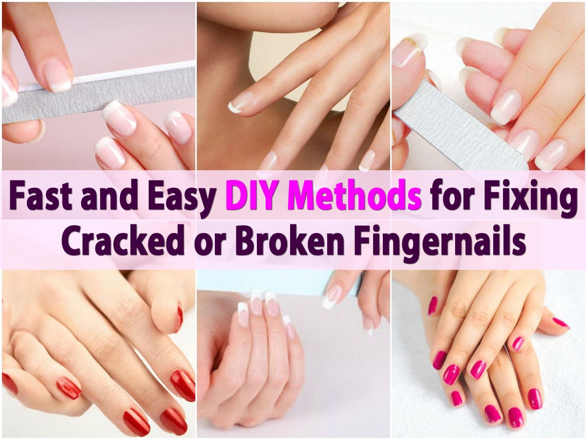 Fast and Easy DIY Methods for Fixing Cracked or Broken Fingernails ...