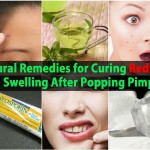 Natural Remedies for Curing Redness and Swelling After Popping Pimples