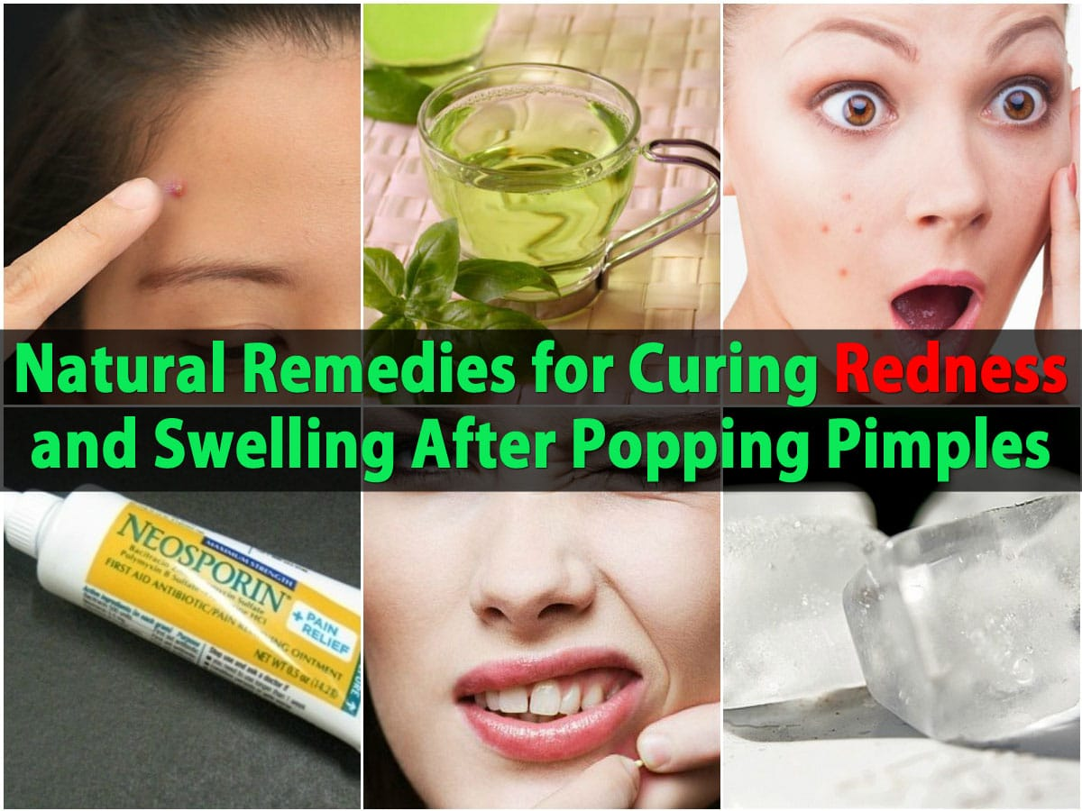 How to get rid redness of pimples