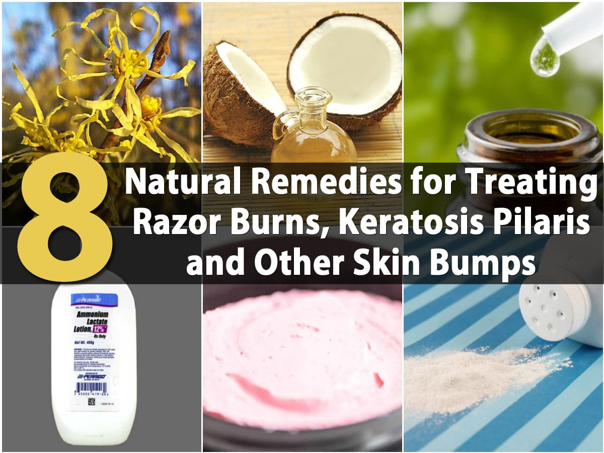 Medications for bumps from bikini wax 6