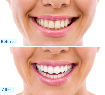 Whiten your teeth - 51 Extraordinary Everyday Uses for Hydrogen Peroxide