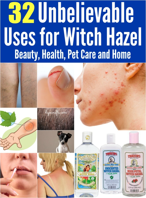 witch hazel on face side effects