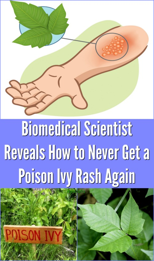 Biomedical Scientist Reveal How to Never Get a Poison Ivy Rash Again {Video}