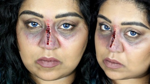 Bruised And Stapled Nose Tutorial